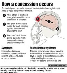 concussion | football sports concussion myths and misconceptions ...