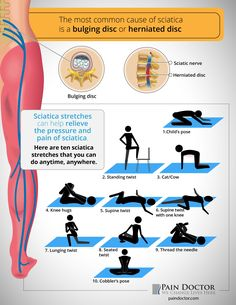 If you have #SciaticPain, what #sciatica stretches help you?
