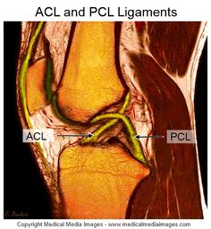 Anatomy Of The Knee, Knee Ligaments, Acl Surgery, Radiology Imaging, Human Body Organs, Cruciate Ligament, Knee Replacement Surgery, Craniosacral Therapy, Magnetic Resonance Imaging