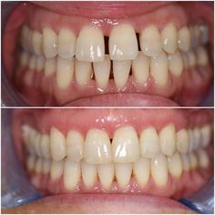 Perio space cases and black triangles can be carefully treated with clear aligners. A 17 aligner Invisalign full case modified to 3 week wear per aligner to reduce velocity. Monitored on a 3 weekly basis to ensure perfect oral hygiene measures! And a stunning result ensues. #smilesolutionslondon #londondentist #dentistlondon #cosmeticdentistry #dentistry #dental #odonto #smiledesign #odontologia #odontologiaestetica #periodontaldisease #gumdisease #orthodontics #invisalign #clearbraces…