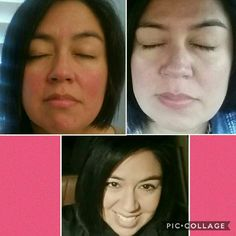 These are my results after 3 weeks of using the Rodan + Fields Soothe Regimen. Message me for information about Rodan + Fields. www.ebutts.myrandf.com
