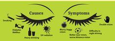 Keeping An Eye On #Cataract #eye #eyecare #eyematters