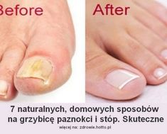 HOTTO.PL--GRZYBICA PAZNOKCI-GRZYBICA-STOP-DOMOWE-SPOSOBY Nails, Beauty, Diet, Beleza, Ongles, Nail, November Nails, Sns Nails, Finger Nails