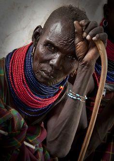 Cirugía en Turkana _ Campaña 2012_MG_5138_1 | by giselafpj