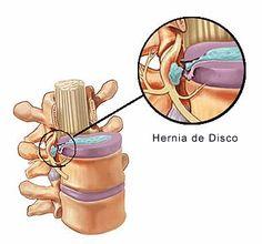 Es una lesión producida por la degeneración del disco intervertebral  y la salida total o parcial del núcleo pulposo a través del anillo fi...