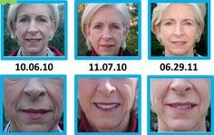 Rodan + Fields Dermatologists - Redefine & AMP MD - Before & After Results over 9 months
