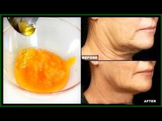 She's 64 Years Old And Everyone Envies Her. Her Face Is Wrinkles Free And Her Skin Is Beautiful - YouTube