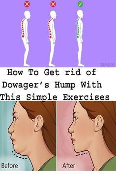 9f6f6c25f48f2db27d35cdd16cdb4975 - How To Get Rid Of Dowager S Hump Exercises