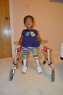pumpkin decorating pumpkin girl with spina bifida