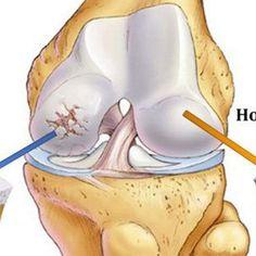 Многие женщины после 35 лет начинают жаловаться на боли в суставах. Это обусловлено сидячей работой, неправильным питанием и отсутствием физических нагрузок. Чтобы избавится от болей и восстановить подвижность...