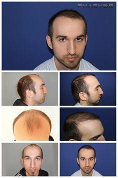 Transplantacia vlasov fue vysledky pred po fotografie james fenyvesi - PHAEYDE Klinika