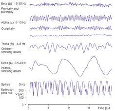 Brain Anatomy And Function, Neurofeedback Therapy, B 13, Brain Waves, Neurology, Epilepsy, Neuroscience, Physiology, Medical