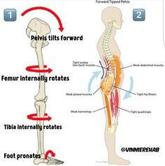 In the picture above you can see in 1. how an anterior tilt of the pelvis will affect the joints and basically internally rotate your femur and tibia as well as pronate your foot. In 2. you see how coupled with the joint mechanics of 1 you will get a specific pattern of muscle compensations to go along with your anterior tilt.
