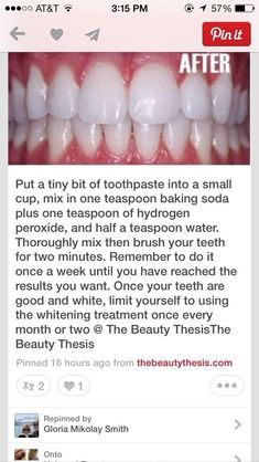 How to get white teeth fast - easy -strong Teeth Whitening Remedies, Natural Teeth Whitening, Whitening Kit, Skin Whitening, Get Whiter Teeth, Skin Care Routine For 20s, Receding Gums, Teeth Care, At Home Spa