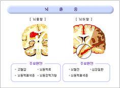 뇌졸중 - Google 검색