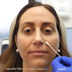 Injectable fillers are one option for treating facial lines, such as nasolabial folds around the mouth. Cheek Fillers, Botox Fillers, Dermal Fillers, Fillers For Face, What Causes Wrinkles, Prevent Wrinkles, Anti Aging Treatments, Skin Treatments