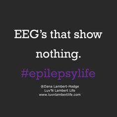 Epilepsy Facts, Epilepsy Quotes, Epilepsy Awareness Month, Seizure Symptoms, Epilepsy Seizure, Seizures Non Epileptic, Temporal Lobe Epilepsy, Epilepsy Treatment