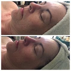 Felling sluggish after the weekend? Want results on Monday?? Our uplift masque is no joke. These are real results on a real client😉 with no filter. Check out the difference in #radiance, #glow, #tightening, and #firming. Is it time for you to get on a skin care regime that works. Book a facial with @thesugaredbelle #nofilter #salon #spa #skin #brea #beauty #rhondaallison #facial #teamleo  #Regram via @thesugaredbelle