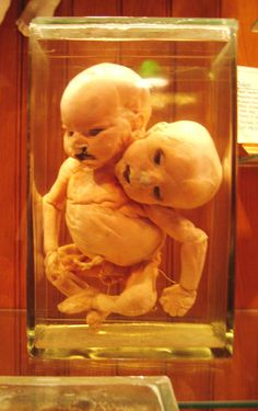 Strange medical relics from the Mutter Museum