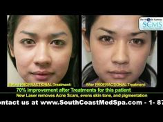 Facial brown spots for laser treatment