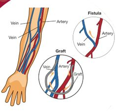 Difference between a graft and a fistula
