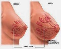 O desenvolvimento das células mamárias ajudam a aumentar os seios preenchendo os dutos que conectam ao bico. Aumenta o tecid...