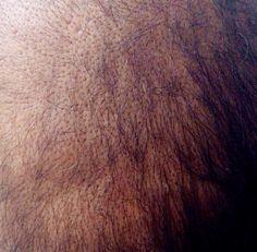 Thining hair near the Euston road on 29