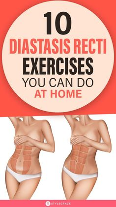 Post Baby Workout, Post Pregnancy Workout, Mommy Workout, Postpartum Workout Plan, Postnatal Workout, Diastasis Recti Exercises, Tummy Tuck Exercise, Get In Shape, Excercise