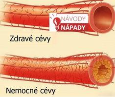cevy1