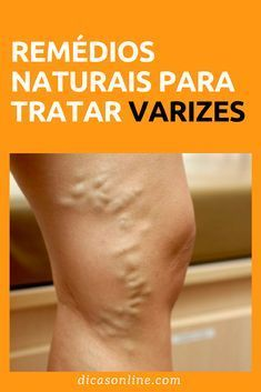 Home Health Health Care Health Fitness Home Remedies Natural Remedies Health Remedies Health Recipes Health Tips Herbal Medicine Varicose Vein Remedy, Varicose Veins, Vapo Rub, Vida Natural, Knee Pain, How To Remove, How To Make, Gym Workouts, Natural Remedies