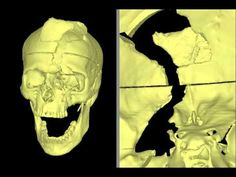 Phineas Gage's Connectome