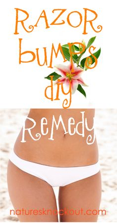 Razor bumps Natural Remedy