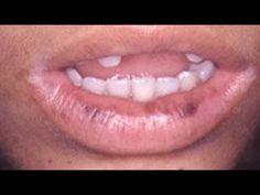 Trucos de Belleza Para Aclarar Los Labios Oscuros o Manchados Naturalmente - YouTube