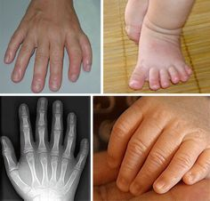 Polydactyly is a condition in which extra digits are present. In the majority of cases the extra digit is unusable and removed at an early age. Polydactyly is relatively rare in humans, but incredibly common in cats, and it's not unusual for them to have Human Growth And Development, Polydactyl Cat, Human Oddities, Weird Science, Life Science, Medical History, Anatomy And Physiology, Human Condition, Weird And Wonderful