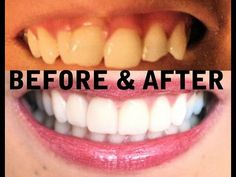 Things you should know before Invisalign and Veneers!    My teeth transformation: http://www.youtube.com/watch?v=afwi70-oFos