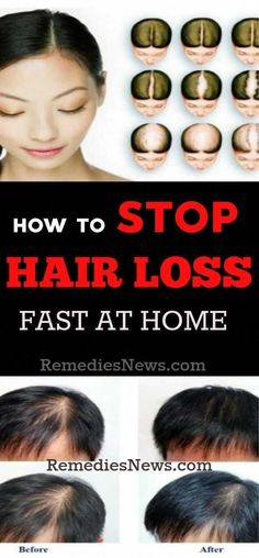 Natural Remedies for Hair Loss: 11 Best Treatment for Hair Fall and Regrowth #WhatToDoForHairLoss #NaturalShampooForHairLoss #BiotinAndHairLoss #NaturalHairLossPrevention Baby Hair Loss, Hair Loss Cure, Oil For Hair Loss, Stop Hair Loss, Prevent Hair Loss, Natural Hair Loss Treatment, Natural Hair Growth, Natural Hair Styles, Female Hair Loss Treatment