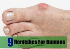 9 Remedies For Bunions