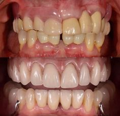 Perfect Smile, Root Canal, Cosmetic Dentistry, White Teeth, Orthodontics, Cavities, Dental, Cosmetics
