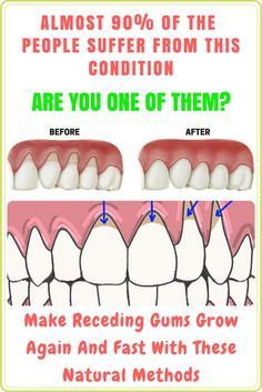 MAKE RECEDING GUMS GROW AGAIN AND FAST WITH THESE NATURAL METHODS http://reviewscircle.com/health-fitness/dental-health/natural-teeth-whitening/