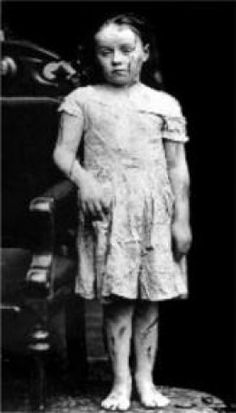 Mary Ellen Wilson-America's First Recognized Child Abuse Case... she was abused not by her parents but her foster family.  http://www.americanhumane.org/about-us/who-we-are/history/mary-ellen-wilson.html