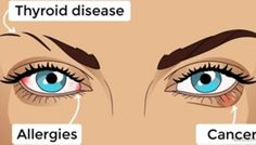 Your eyes are the windows to your soul and to your overall health. You may be surprised, but there is a wide variety of health issues (such as stroke, diabetes, liver failure and heart disease) whi… Eyes Problems, Health Problems, Cerebral Circulation, Corneal Ulcer, Health Facts, Health Tips, Health Benefits, Abdominal Bloating, Eye Facts