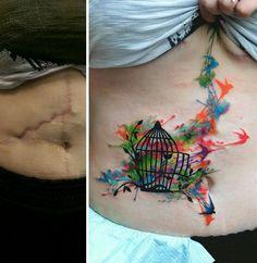 tatuajes-que-transforman-cicatrices-en-obras-de-arte