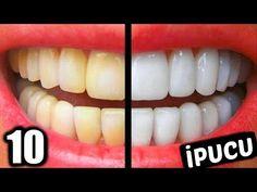 EVDE ANINDA DİŞ BEYAZLATMA! 5 Dakikada Bembeyaz Dişlere Sahip Olun - YouTube