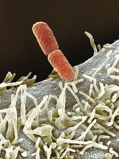 SEM of Shigella sp. Bacteria (red) on the surface of a cell. Weird Science, Life Science, Science Nature, Biochemistry Major, Scanning Electron Microscope, Microscopic Images, Macro And Micro, Systems Biology, Medical Terminology