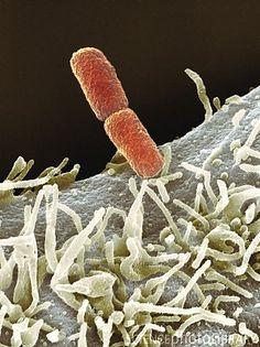 Shigella bacteria.