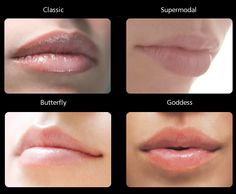 Achieve the KISSABLE lips you've always wanted with Dermal Fillers. Schedule a consultation at BELLA DERMA MEDI SPA.