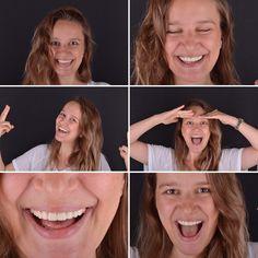"""88 Beğenme, 12 Yorum - Instagram'da Dr. Fatih Erkün DDS (@fatiherk): """"Mutluluğun resmi😃Thanks to @dis_atolyesi @zuhaldegers #dentalphotography #dentalcases…"""""""