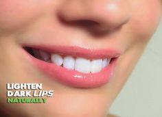 BrownyGirl - 9 Home Remedies To Lighten Dark Lips