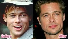 Brad Pitt.. b4 & after ears pinned back surgically..