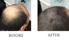 Before and after Hairbond Dimensions